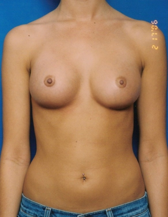 Another after picture for Case 2 Breast Augmentation Before and After Photos