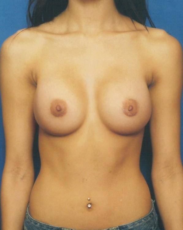 Another after picture for Case 3 Breast Augmentation Before and After Photos