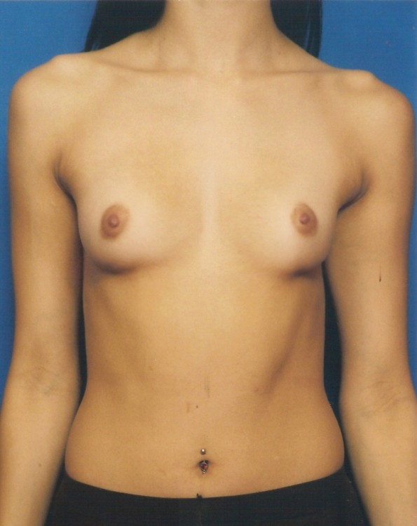 Another before picture for Case 3 Breast Augmentation Before and After Photos