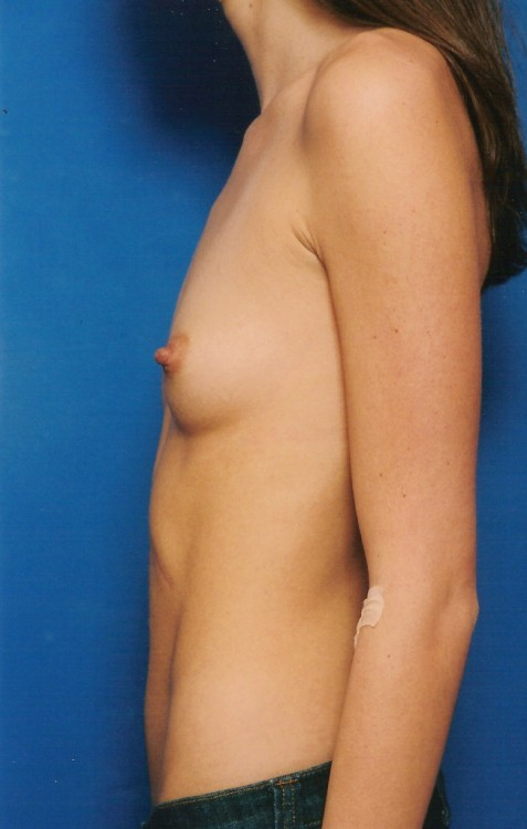 Another before picture for Case 4 Breast Augmentation Before and After Photos