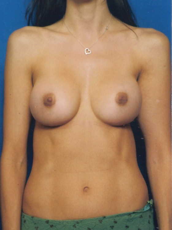 Another after picture for Case 5 Breast Augmentation Before and After Photos