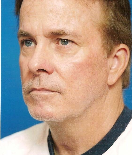 Another before picture for Case 2 Blepharoplasty (Upper Eyelid Lift) Before and After Photos