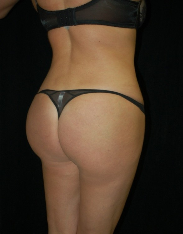 Another after picture for Case 1 Brazilian Butt Lift Before and After Photos