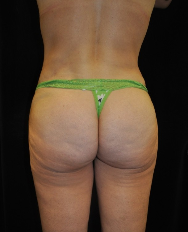 Another after picture for Case 3 Brazilian Butt Lift Before and After Photos