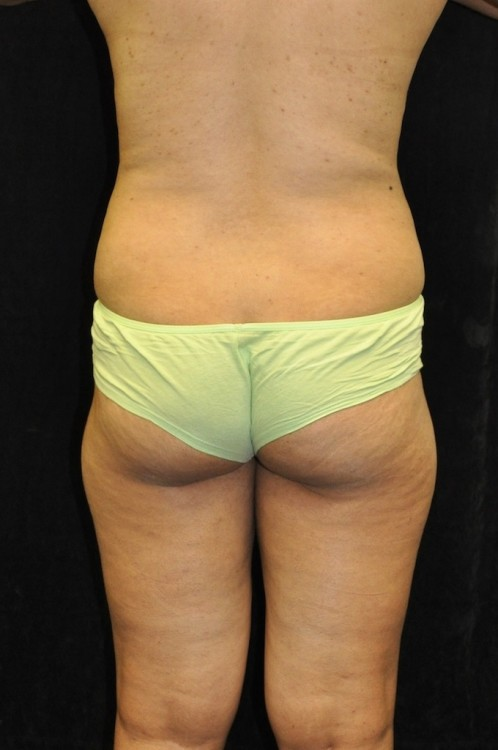 Another before picture for Case 4 Brazilian Butt Lift Before and After Photos