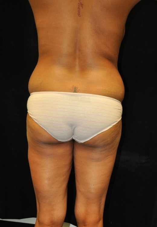 Another before picture for Case 5 Brazilian Butt Lift Before and After Photos