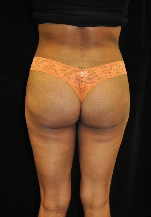 Another after picture for Case 5 Brazilian Butt Lift Before and After Photos