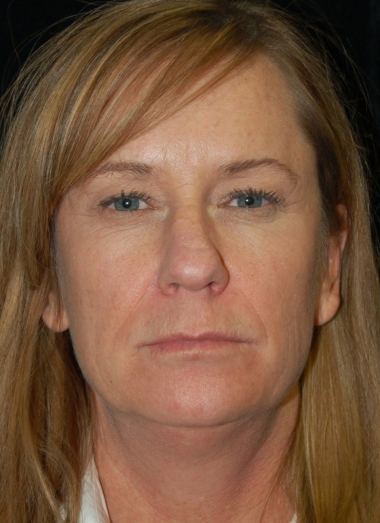 Another before picture for Case 1 Blepharoplasty (Upper Eyelid Lift) Before and After Photos