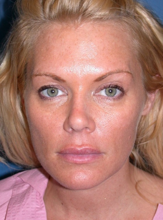 Another before picture for Case 5 Blepharoplasty (Upper Eyelid Lift) Before and After Photos