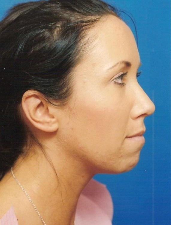 Another before picture for Case 1 Chin Augmentation Before and After Photos