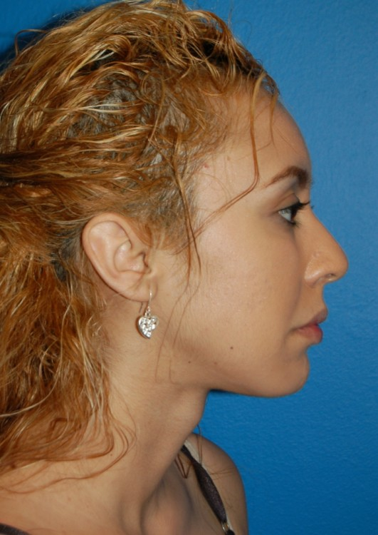 Another after picture for Case 4 Chin Augmentation Before and After Photos