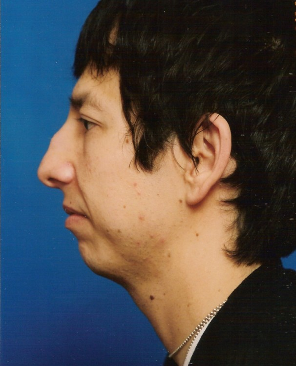 Another before picture for Case 5 Chin Augmentation Before and After Photos