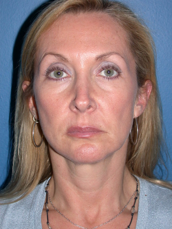 Another before picture for Case 1 Facelift Before and After Photos