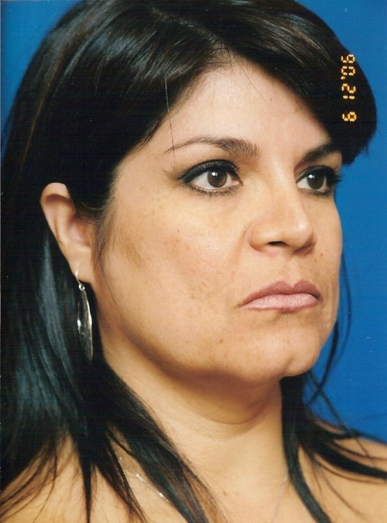 Another before picture for Case 4 Facelift Before and After Photos
