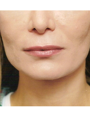 Another before picture for Case 1 Lip Augmentation Before and After Photos