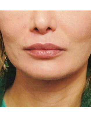 Another after picture for Case 1 Lip Augmentation Before and After Photos