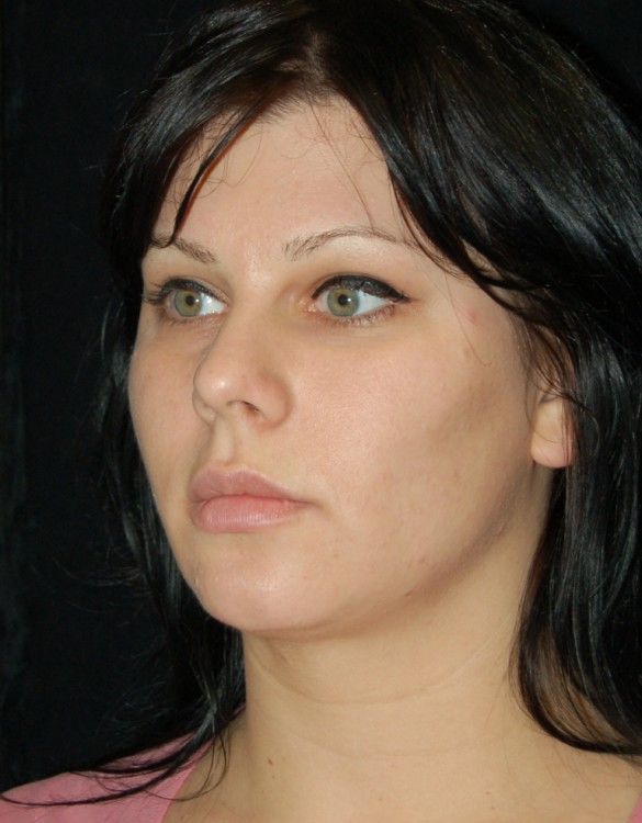 Another after picture for Case 2 Neck Liposuction Before and After Photos