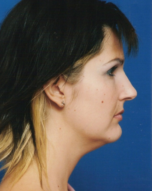 Another before picture for Case 3 Neck Liposuction Before and After Photos