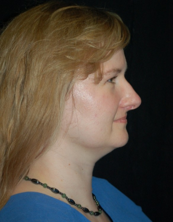 Another before picture for Case 4 Neck Liposuction Before and After Photos
