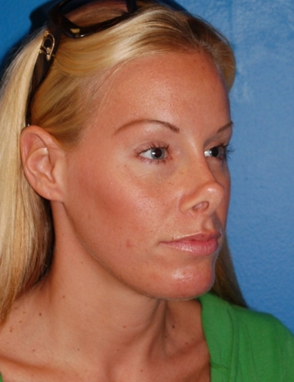 Another before picture for Case 1 Rhinoplasty Revision Before and After Photos