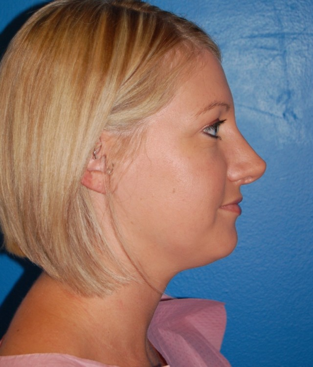 Another before picture for Case 2 Rhinoplasty Revision Before and After Photos
