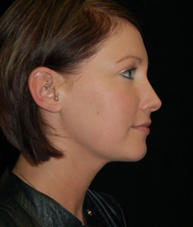 Another after picture for Case 2 Rhinoplasty Revision Before and After Photos