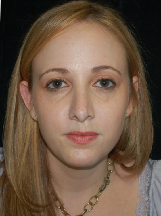 Another before picture for Case 5 Rhinoplasty Revision Before and After Photos