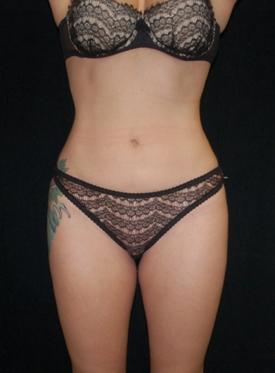 Another after picture for Case 3 Liposuction Before and After Photos