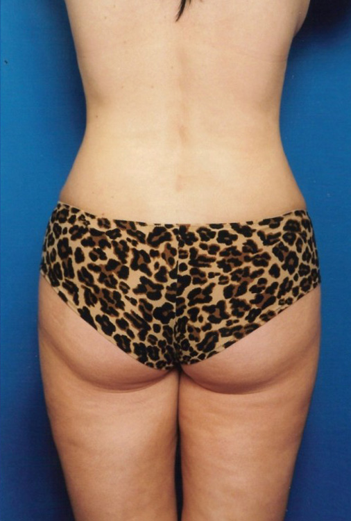 Another after picture for Case 4 Liposuction Before and After Photos
