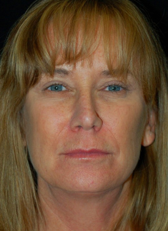 Another after picture for Case 1 Blepharoplasty (Upper Eyelid Lift) Before and After Photos