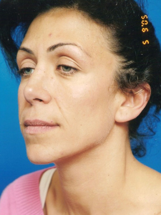 Another before picture for Case 3 Blepharoplasty (Upper Eyelid Lift) Before and After Photos