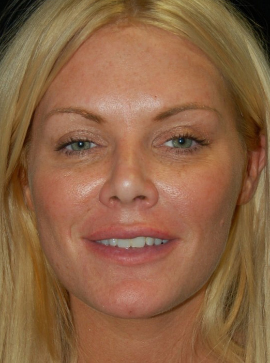 Another after picture for Case 5 Blepharoplasty (Upper Eyelid Lift) Before and After Photos