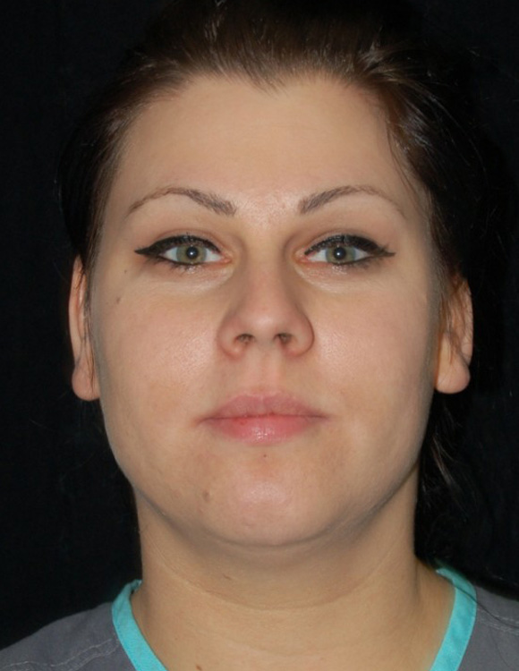 Another before picture for Case 1 Buccal Lipectomy Before and After Photos