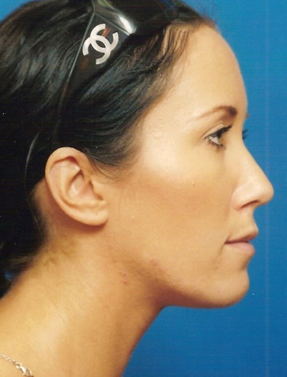 Another after picture for Case 1 Chin Augmentation Before and After Photos