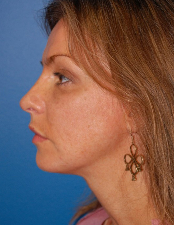 Another after picture for Case 2 Chin Augmentation Before and After Photos