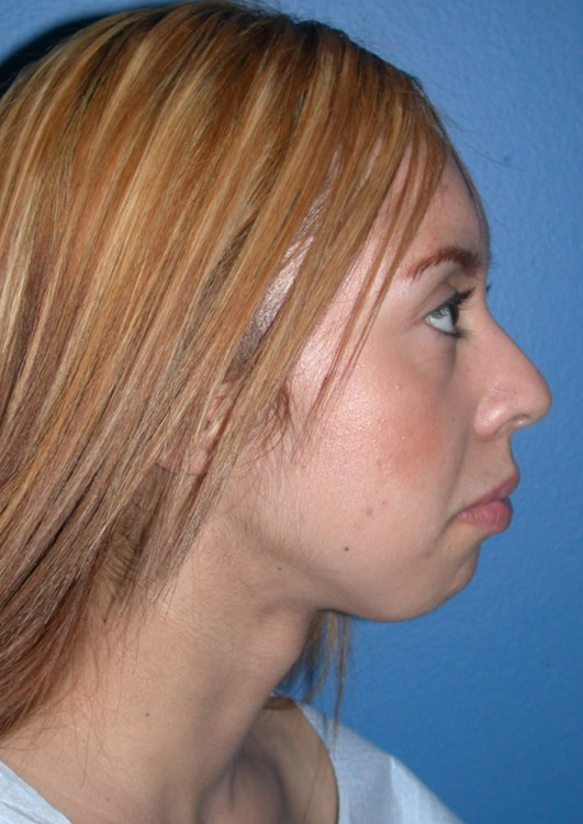 Another before picture for Case 4 Chin Augmentation Before and After Photos