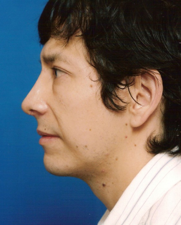 Another after picture for Case 5 Chin Augmentation Before and After Photos