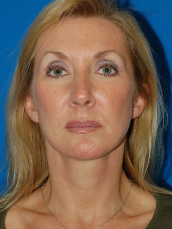 Another after picture for Case 1 Facelift Before and After Photos