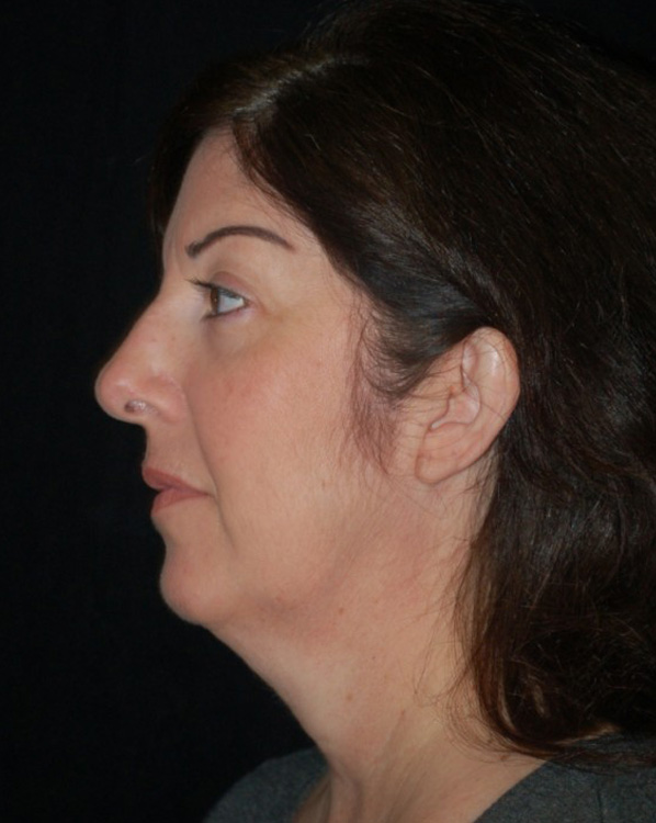 Another before picture for Case 3 Facelift Before and After Photos