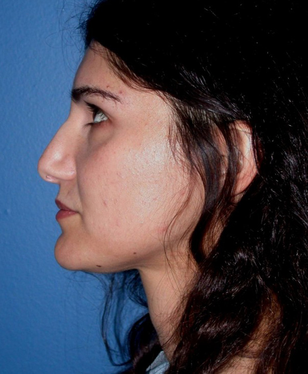 Another before picture for Case 4 Facial Fat Grafting Before and After Photos