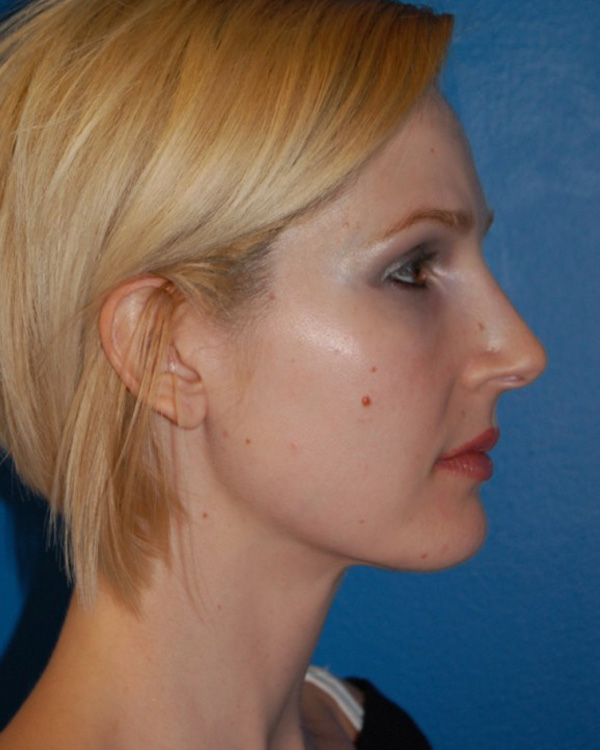 Another after picture for Case 3 Neck Liposuction Before and After Photos