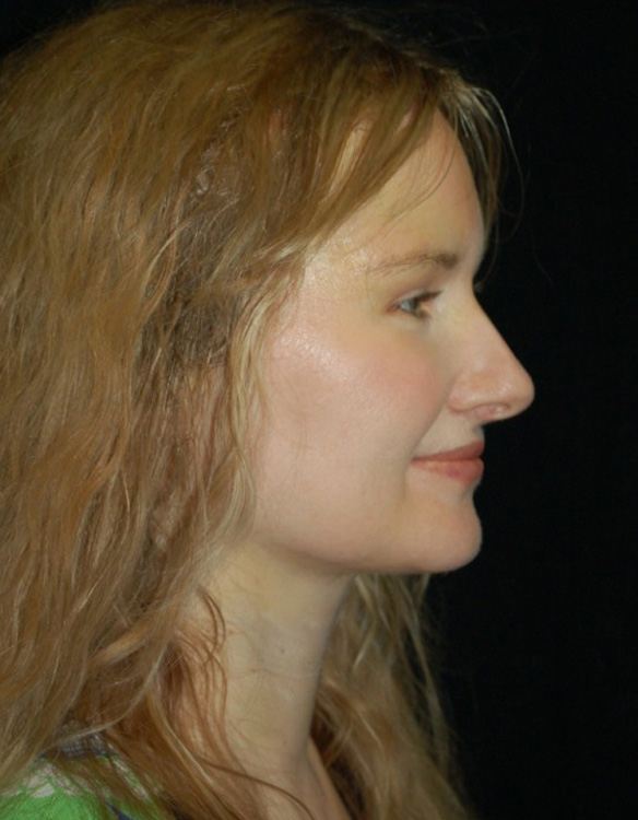 Another after picture for Case 4 Neck Liposuction Before and After Photos