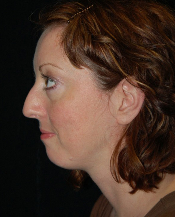 Another before picture for Case 3 Profile Balancing (Chin & Rhinoplasty) Before and After Photos