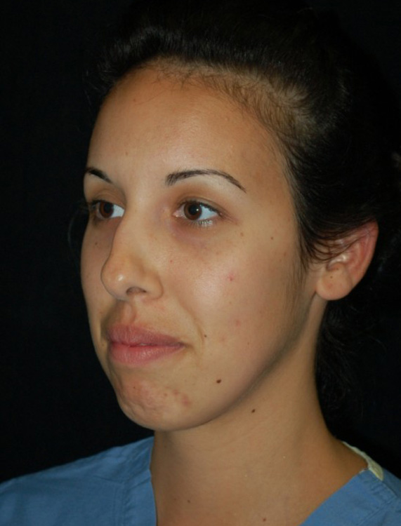 Another before picture for Case 4 Profile Balancing (Chin & Rhinoplasty) Before and After Photos