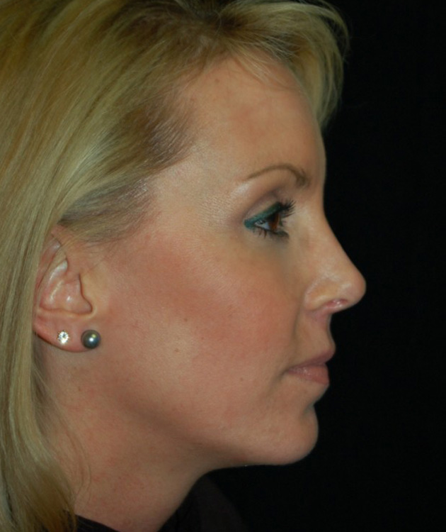 Another after picture for Case 6 Profile Balancing (Chin & Rhinoplasty) Before and After Photos