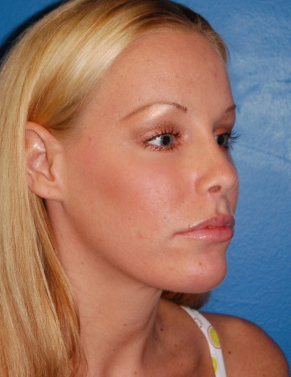 Another after picture for Case 1 Rhinoplasty Revision Before and After Photos