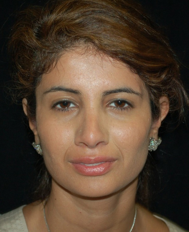 Another after picture for Case 3 Rhinoplasty Revision Before and After Photos