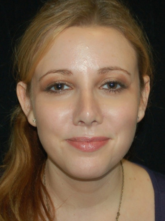 Another after picture for Case 5 Rhinoplasty Revision Before and After Photos