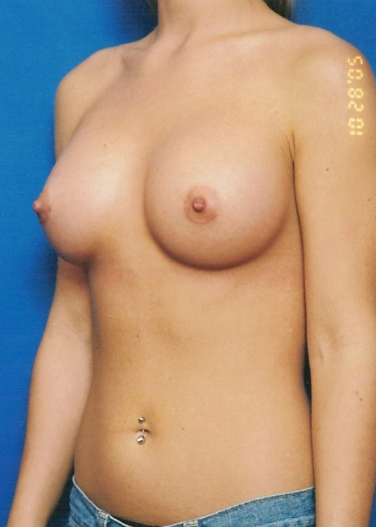 Another after picture for Case 1 Breast Augmentation Before and After Photos