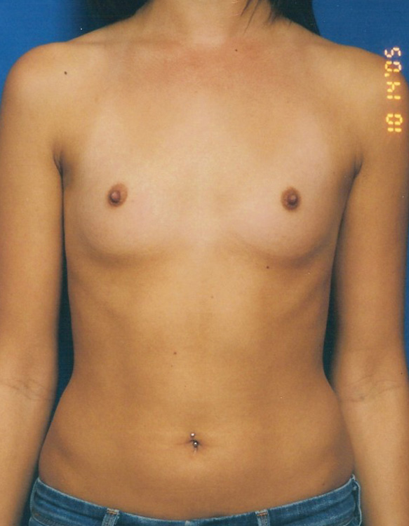 Another before picture for Case 2 Breast Augmentation Before and After Photos